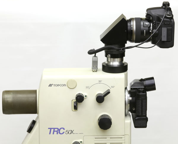 Topcon TRC-50X unit with upper-port diagonal adapter for Canon digital SLR camera