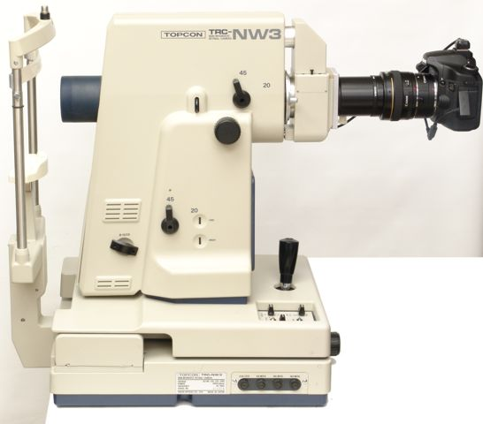 Side view of the digitally upgraded Topcon TRC-NW3