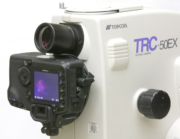 Digital camera adapted and mount on the rear port of the Topcon TRC-50EX